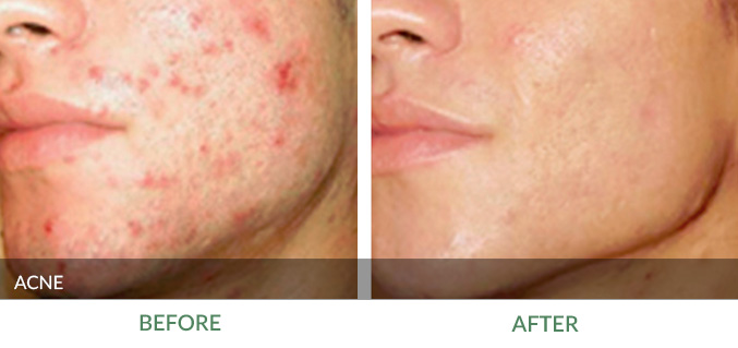 homeopathic acne treatment: